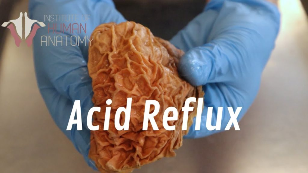 What Is Acid Reflux?