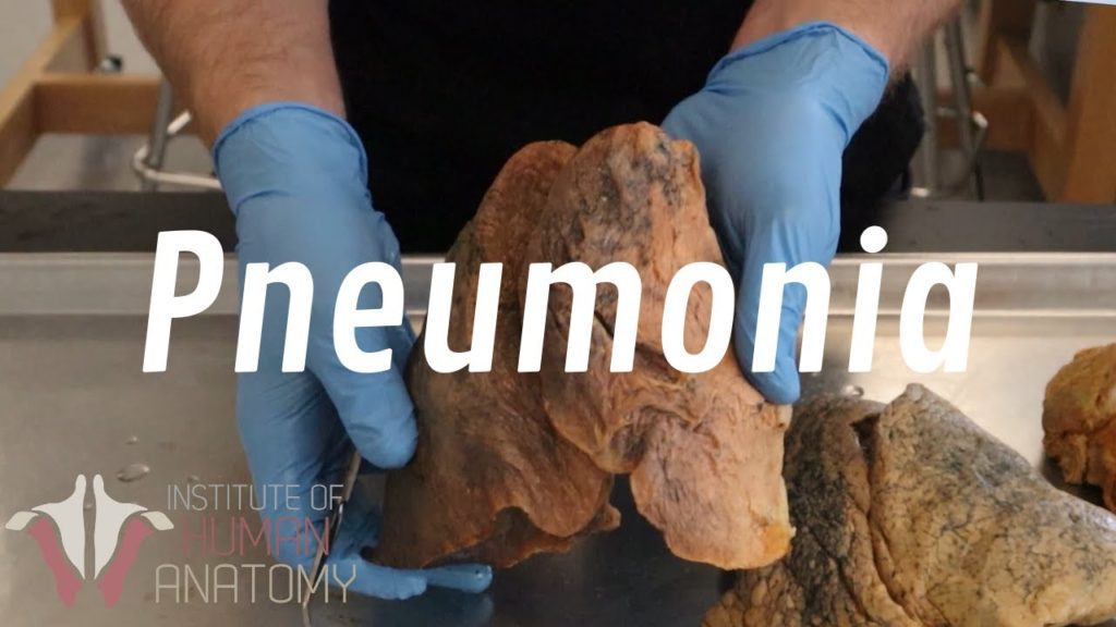 What Is Pneumonia?