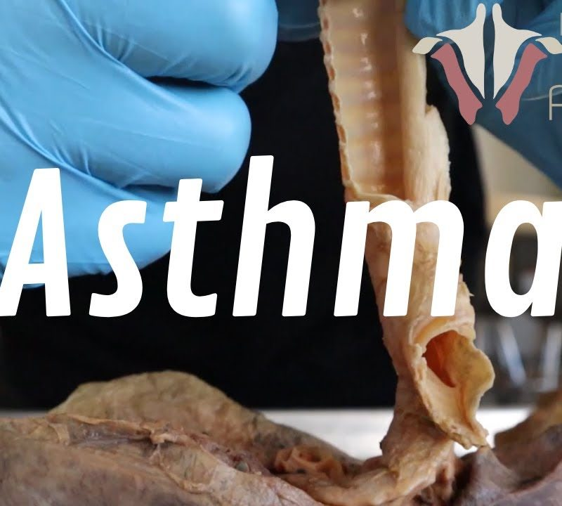 What Is Asthma, and How Is it Treated? | A Deep Look Into Respiratory Disease