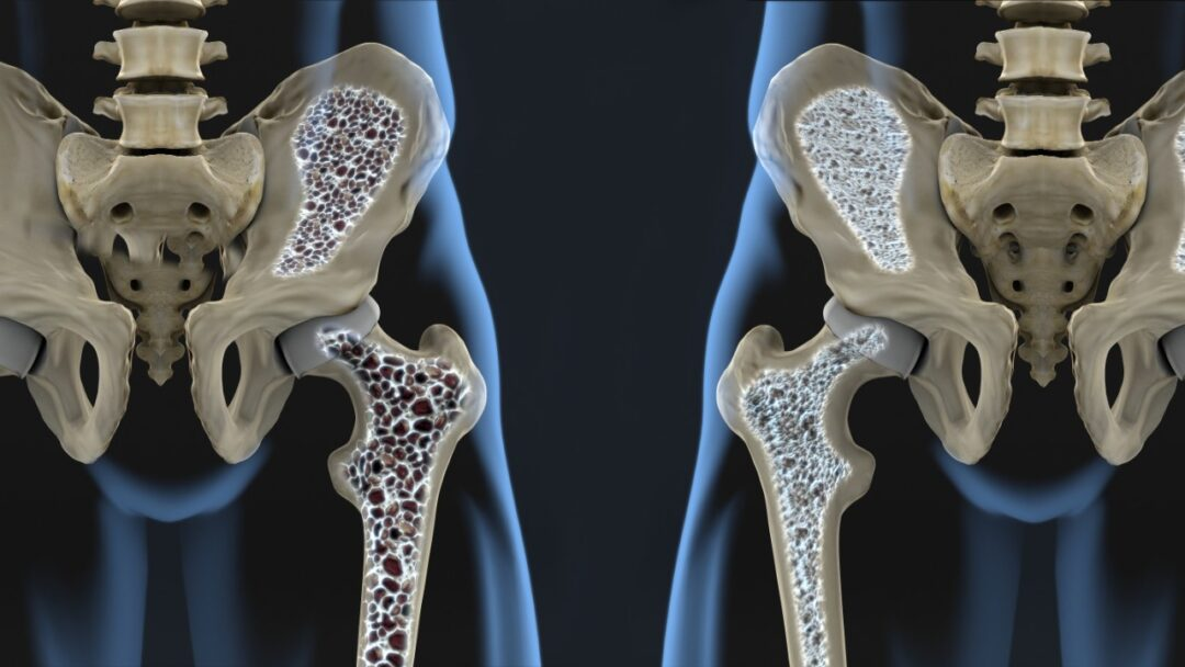How can I prevent osteoporosis?