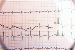 What does or doesn't an electrocardiogram say?