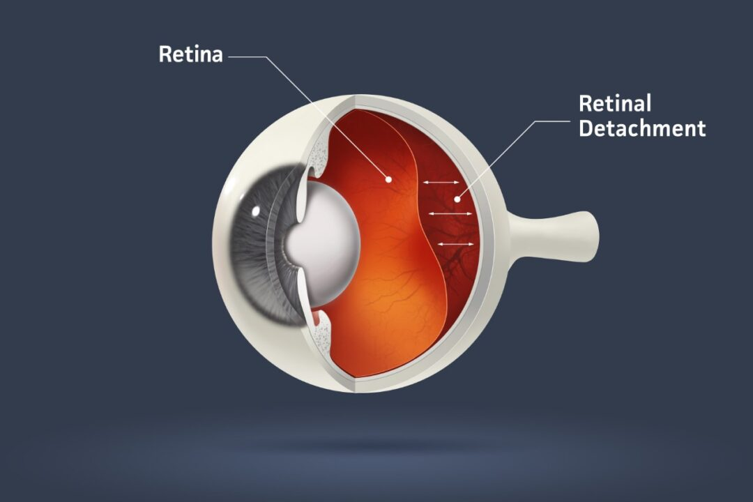 What happens if my retina is detached?