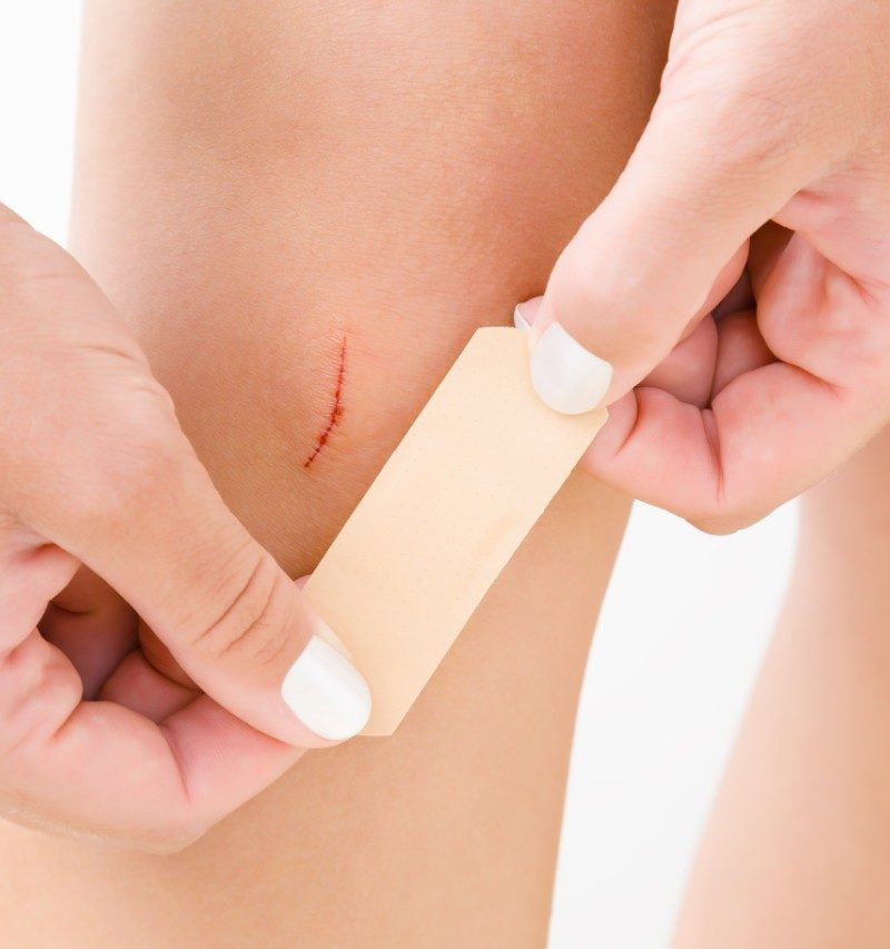 What is the best way to treat a small cut or wound?