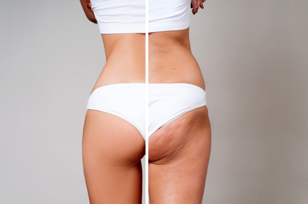 What works and doesn't work on cellulite?