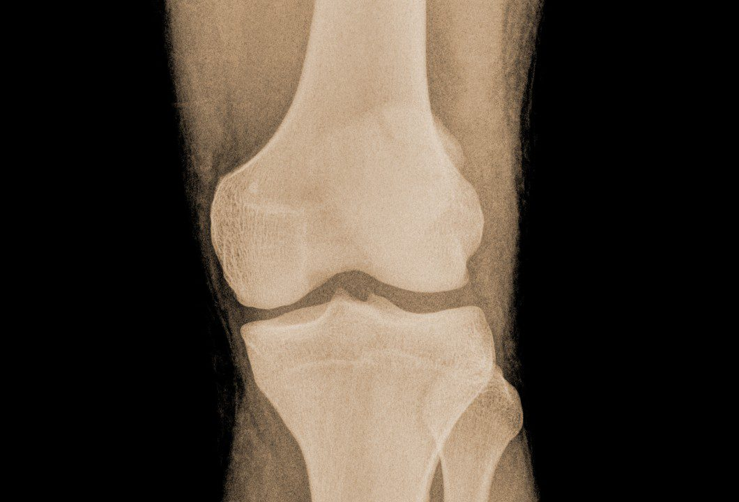 How are growth plate injuries treated?