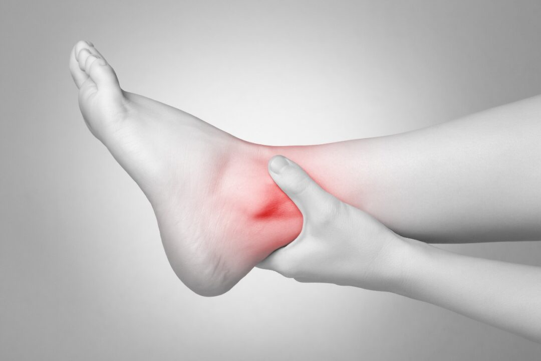 How do I take care of an ankle sprain?