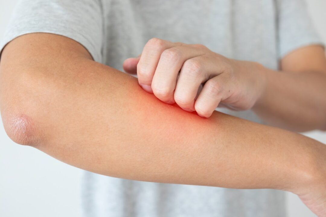 Is itching really a sign of healing?
