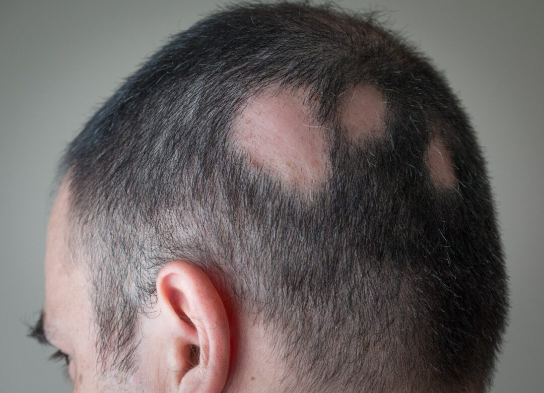 What is Alopecia Areata?