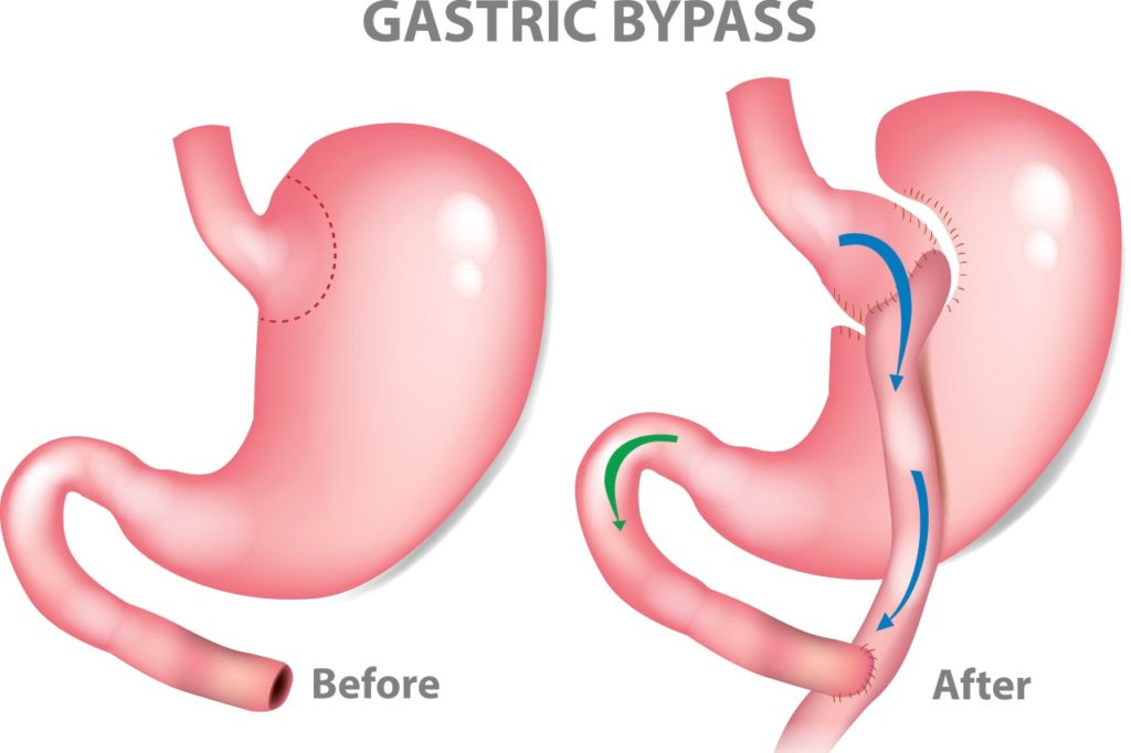 When is Gastric Bypass surgery a good option?