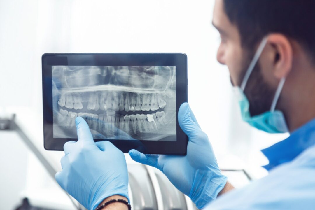Why do we need dental x-rays and how often should they be done?