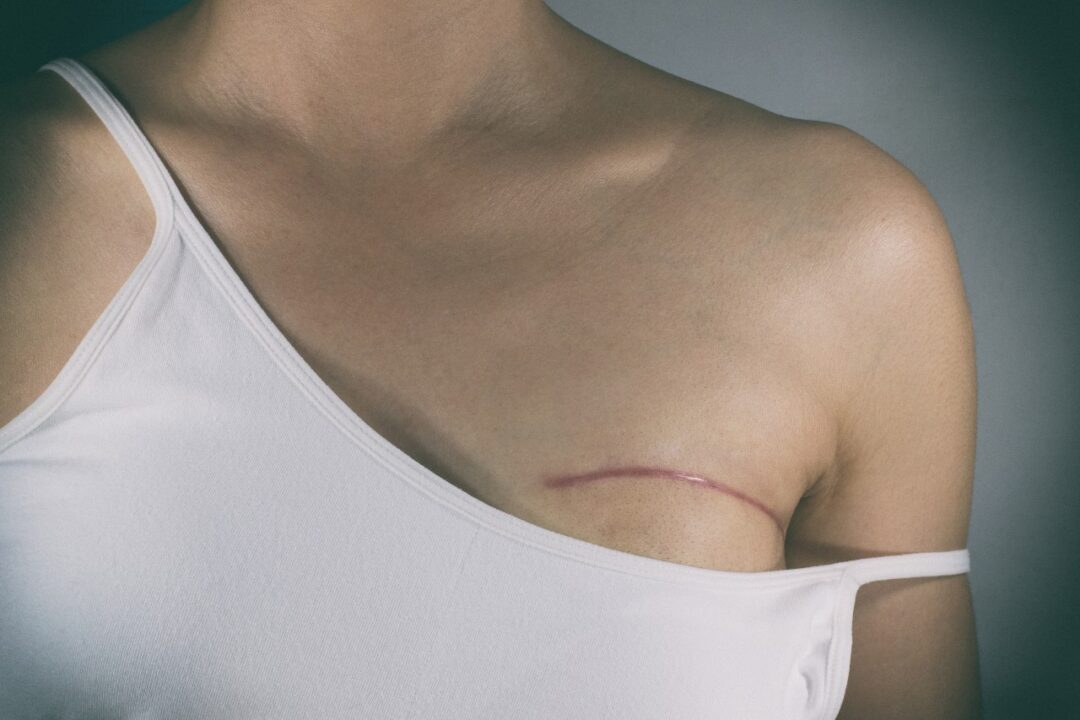 Why do women get a preventive mastectomy?
