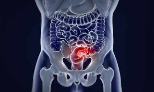Is Colorectal Cancer screening effective?