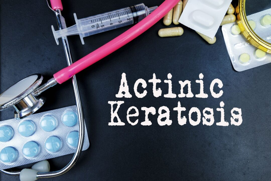 What is Actinic Keratoses?