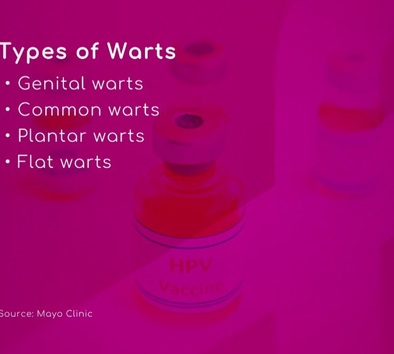 HPV: Types of Warts