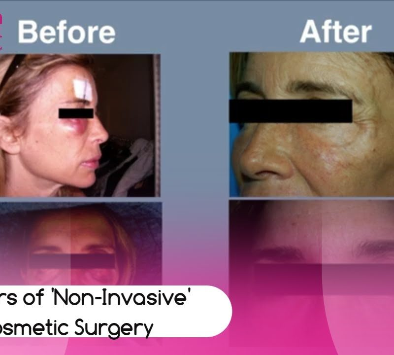 The horrors of 'non invasive' Plastic and Cosmetic Surgery.