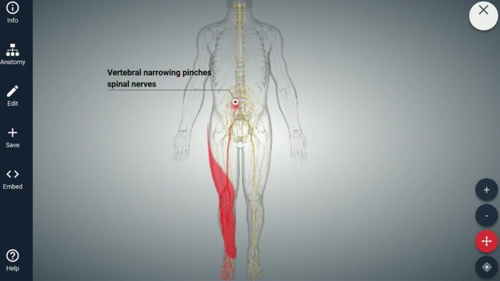 Causes of Spinal Stenosis