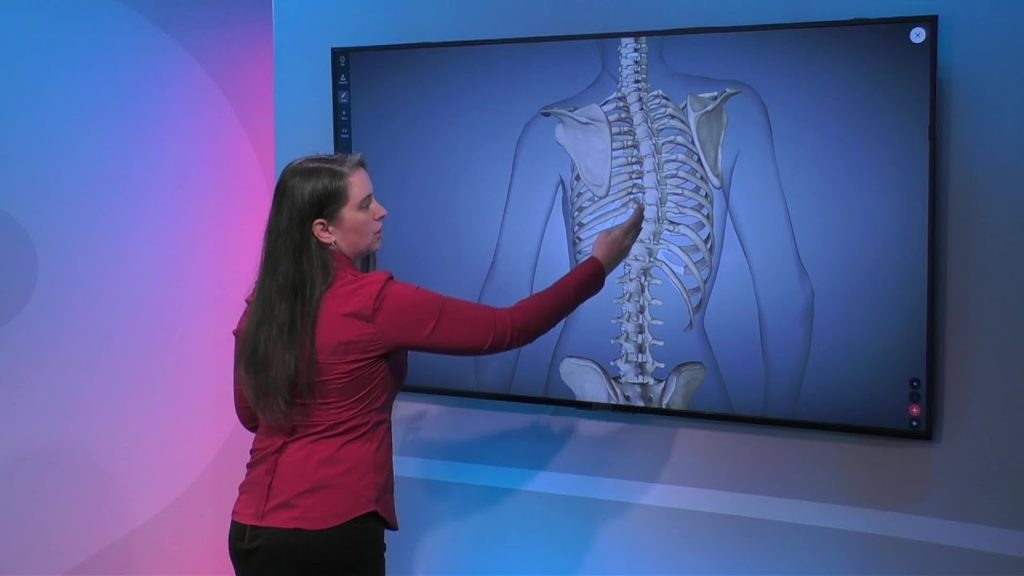 Overview of Scoliosis